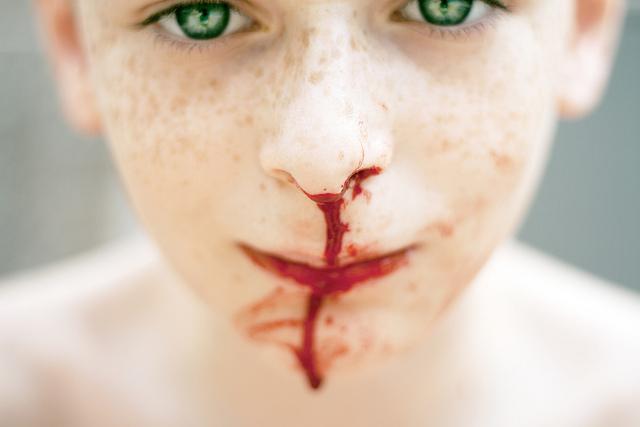 ¿Qué hacer cuando un niño sufre un accidente en el colegio?